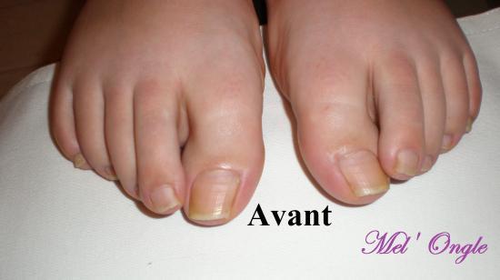 soin des ongles des pieds