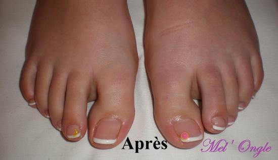 Ongles gel pieds - Coupe des ongles de pieds ...