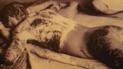 Corps mutile apres explosion de la bombe - Hiroshima