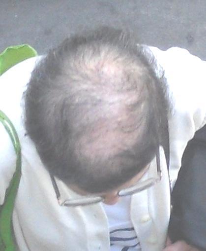 oui, malheureusement, les cheveux ne poussent pas toujours bien où l'on veut, mais avec Miroir 360, cette dame saurait quoi dire