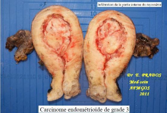 cancer de l'endomètre (cancer utérus) / AFMGOS - Med-sein  / Dr E. PRADOS