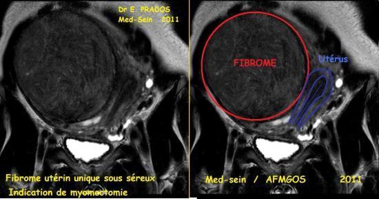 FIBROME Sous séreux unique / Dr E. PRADOS / Medsein