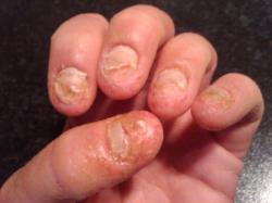 faux ongles infection